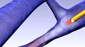Lazer ile damar içi varis tedavisi animasyon